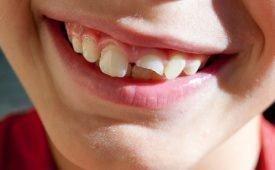 Приметы об отколовшемся зубе