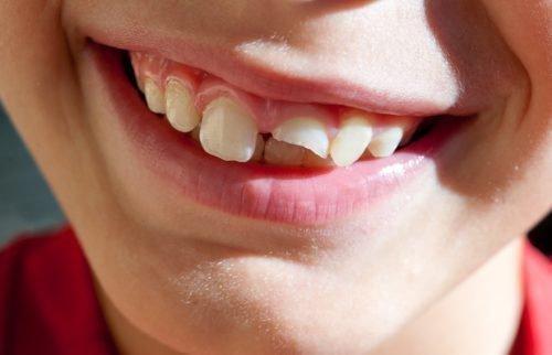 примета сломался зуб