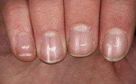 Приметы о белых пятнах на ногтях