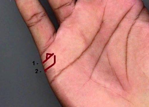на линии брака треугольник