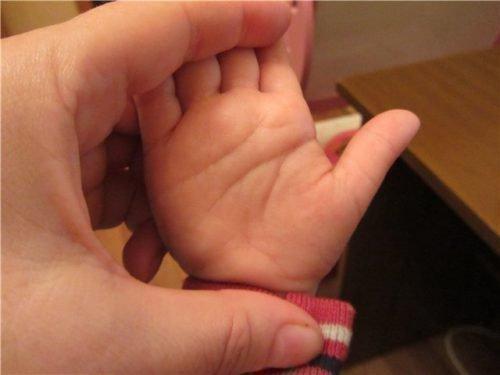 короткая линия жизни на руке у ребенка